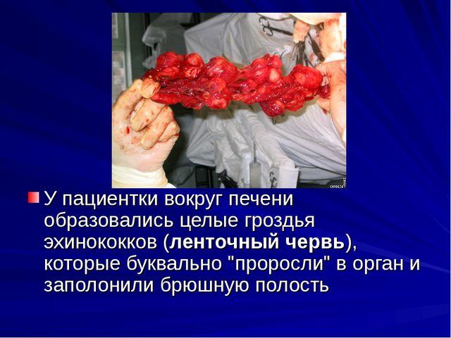 У пациентки вокруг печени образовались целые гроздья эхинококков (ленточный...