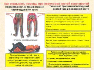 Как оказывать помощь при переломах костей конечностей Переломы костей таза и