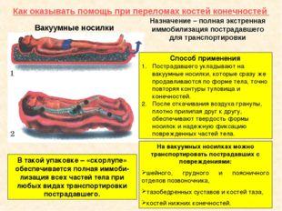 Как оказывать помощь при переломах костей конечностей Вакуумные носилки Назна