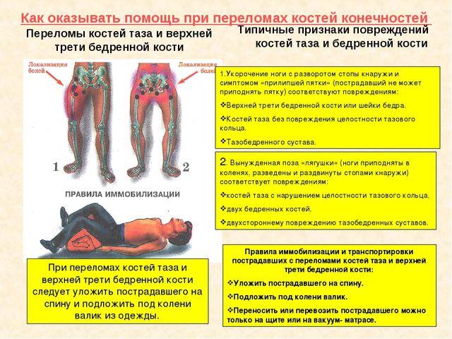 Как оказывать помощь при переломах костей конечностей Переломы костей таза и...