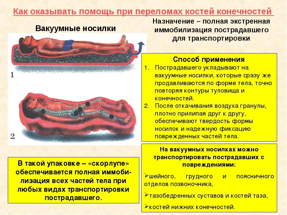 Как оказывать помощь при переломах костей конечностей Вакуумные носилки Назна...