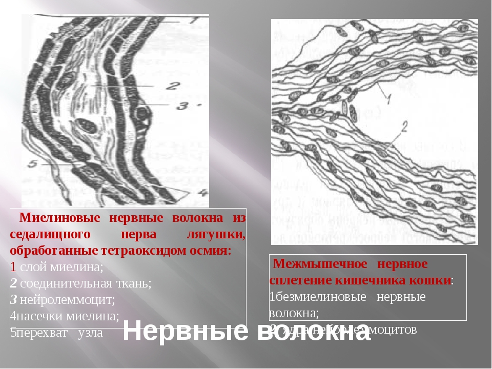 Нервные волокна Миелиновые нервные волокна из седалищного нерва лягушки, обра...