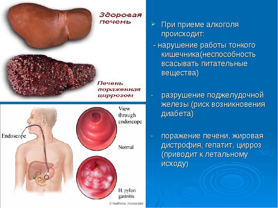 При приеме алкоголя происходит: - нарушение работы тонкого кишечника(неспосо...