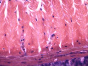 Буылтық құрттар Сирекқылтанды құрттар класы (шұбалшаң) Көпқылтанды құрттар к