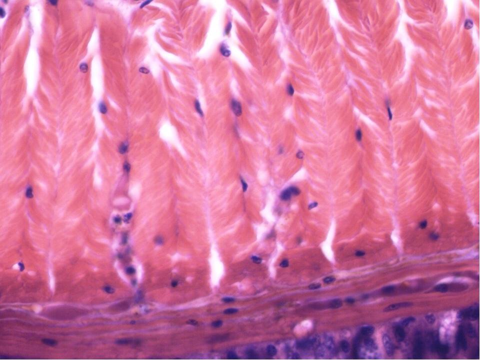 Буылтық құрттар Сирекқылтанды құрттар класы (шұбалшаң) Көпқылтанды құрттар к...