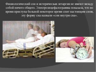 Физиологический сон и истерическая летаргия не имеют между собой ничего общег
