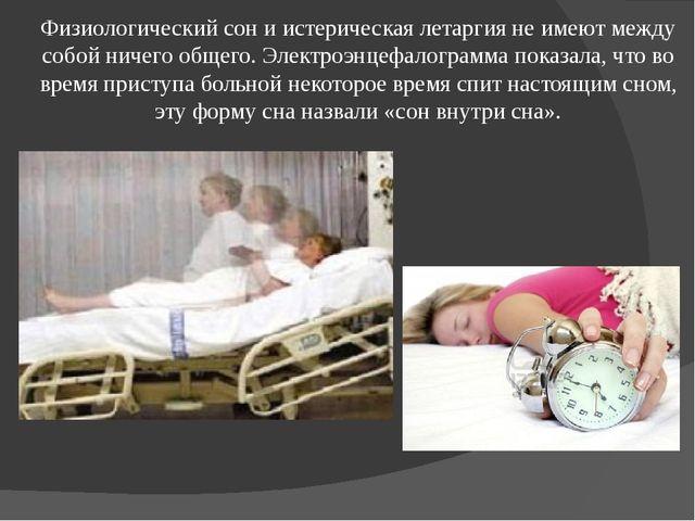 Физиологический сон и истерическая летаргия не имеют между собой ничего общег...