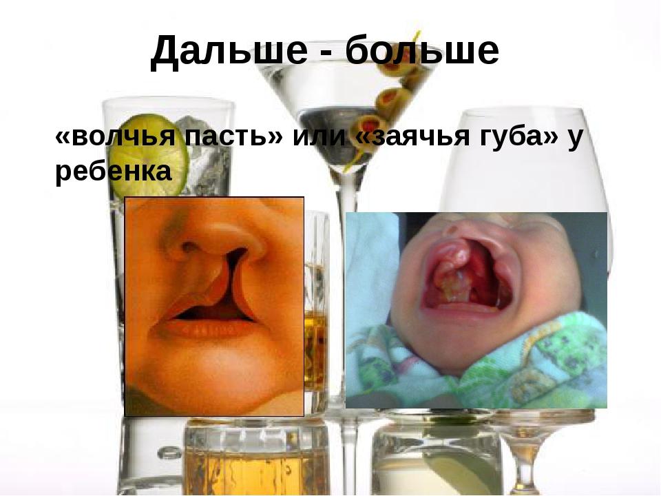 Дальше - больше «волчья пасть» или «заячья губа» у ребенка