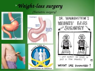 Weight-loss surgery (Bariatric surgery)