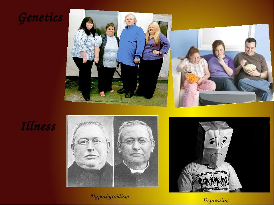 Genetics Illness Hypothyroidism Depression