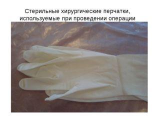 Стерильные хирургические перчатки, используемые при проведении операции