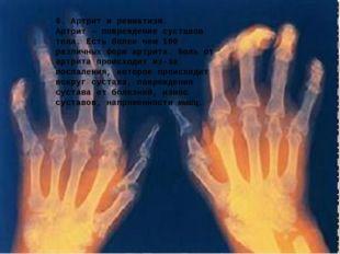 6. Артрит и ревматизм. Артрит - повреждение суставов тела. Есть более чем 100