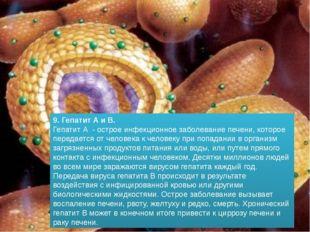 9. Гепатит А и В. Гепатит А - острое инфекционное заболевание печени, которое