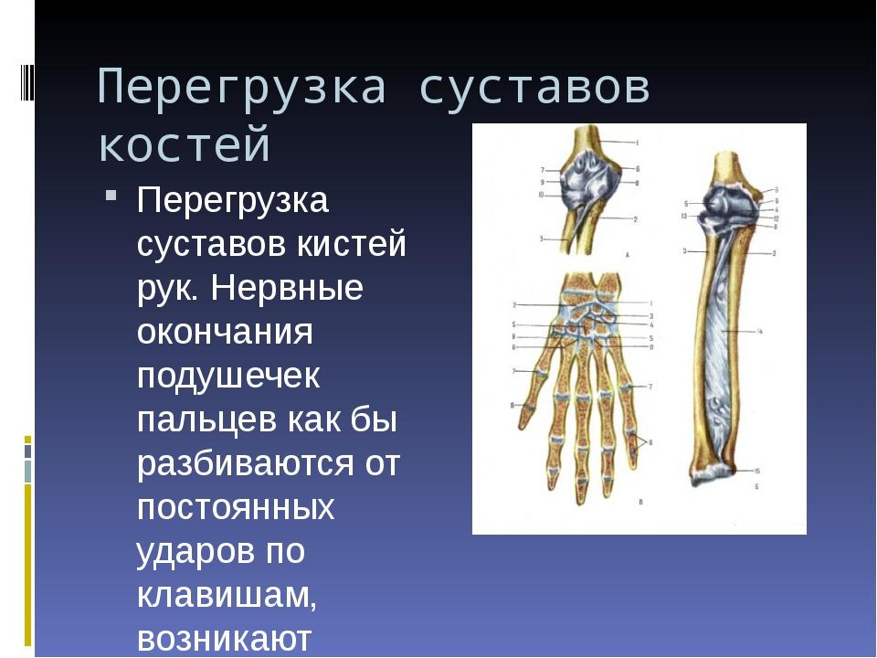 Перегрузка суставов костей Перегрузка суставов кистей рук. Нервные окончания...