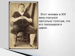Этот человек в XIX веке считался настолько толстым, что его показывали в цир