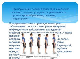 При нарушении осанки происходит изменение костного скелета, ухудшается деяте