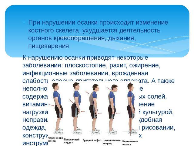 При нарушении осанки происходит изменение костного скелета, ухудшается деяте...