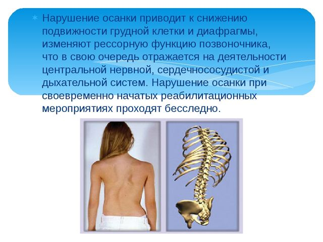 Нарушение осанки приводит к снижению подвижности грудной клетки и диафрагмы,...