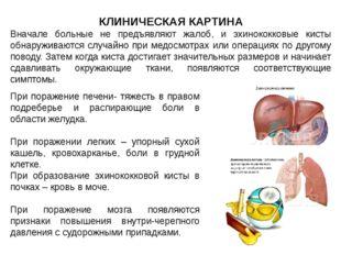 КЛИНИЧЕСКАЯ КАРТИНА Вначале больные не предъявляют жалоб, и эхинококковые кис