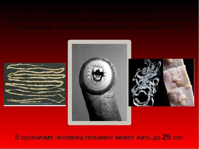 Возбудитель – ЛЕНТЕЦ ШИРОКИЙ. Крупный ленточный червь, длина которого достига...