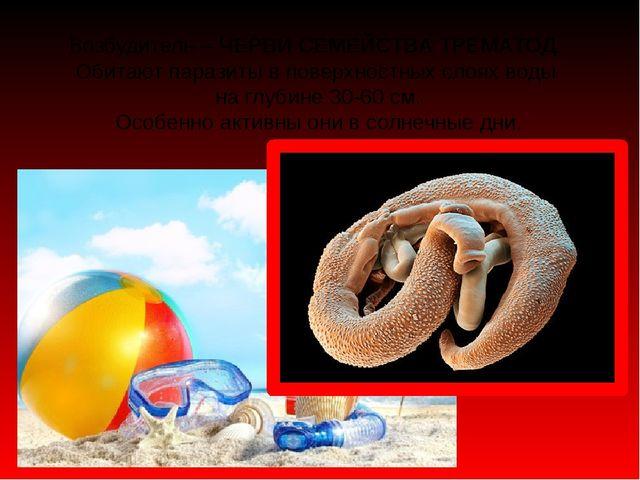 Возбудитель – ЧЕРВИ СЕМЕЙСТВА ТРЕМАТОД. Обитают паразиты в поверхностных слоя...