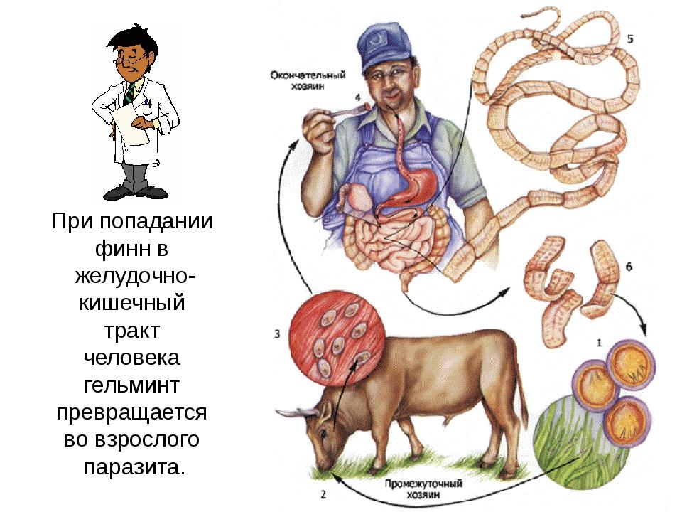 При попадании финн в желудочно- кишечный тракт человека гельминт превращается...