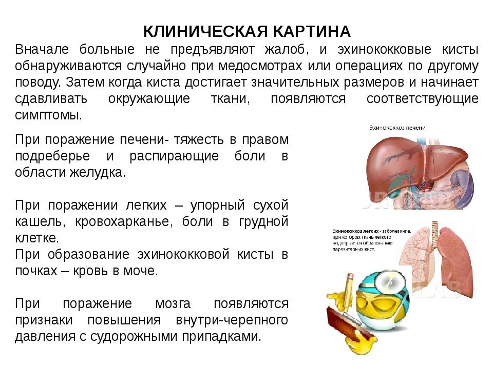 КЛИНИЧЕСКАЯ КАРТИНА Вначале больные не предъявляют жалоб, и эхинококковые кис...