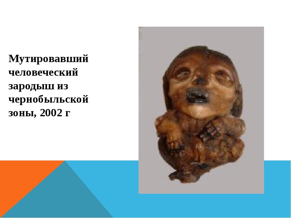 Мутировавший человеческий зародыш из чернобыльской зоны, 2002 г