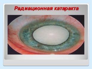 Радиационная катаракта