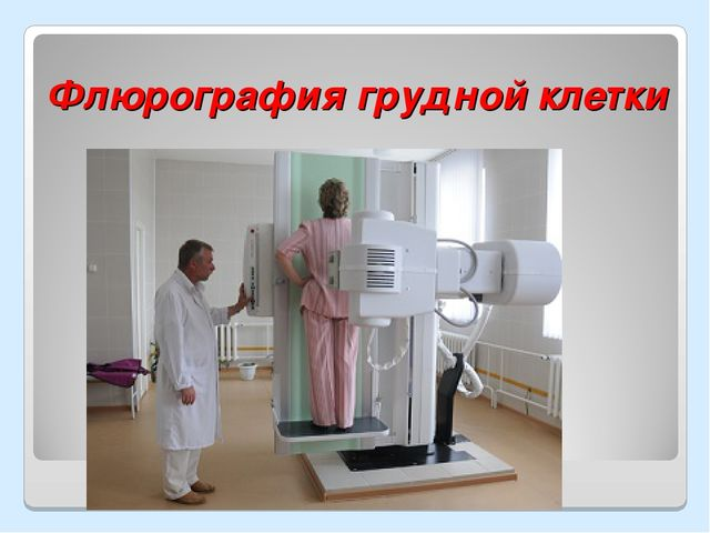 Флюрография грудной клетки