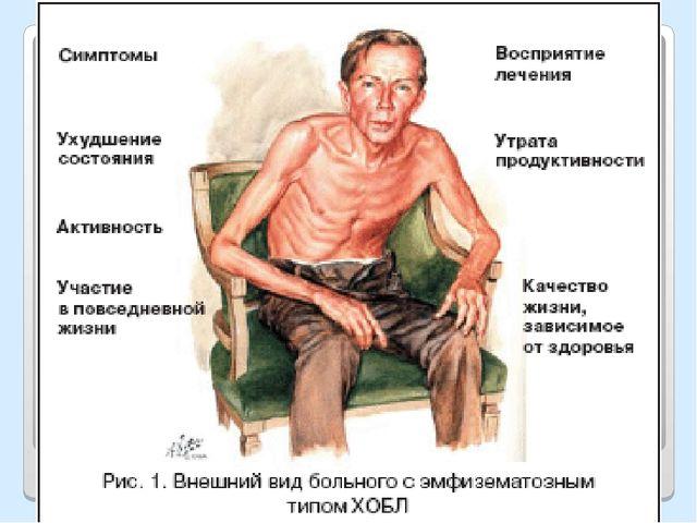 Примеры культуристов больных сахарным диабетом