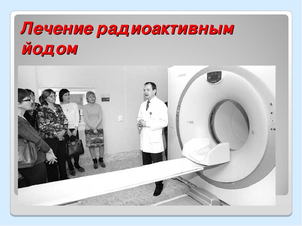Лечение радиоактивным йодом