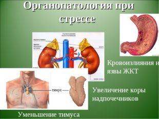 Органопатология при стрессе Уменьшение тимуса Увеличение коры надпочечников