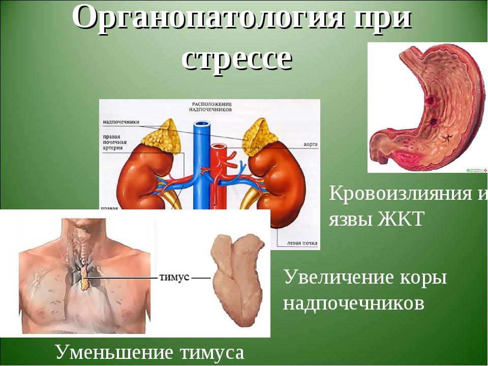 Органопатология при стрессе Уменьшение тимуса Увеличение коры надпочечников...