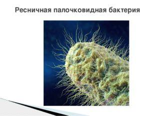 Ресничная палочковидная бактерия