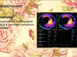 Применение В медицине: компьютерная томография сердца в системе полярных коор
