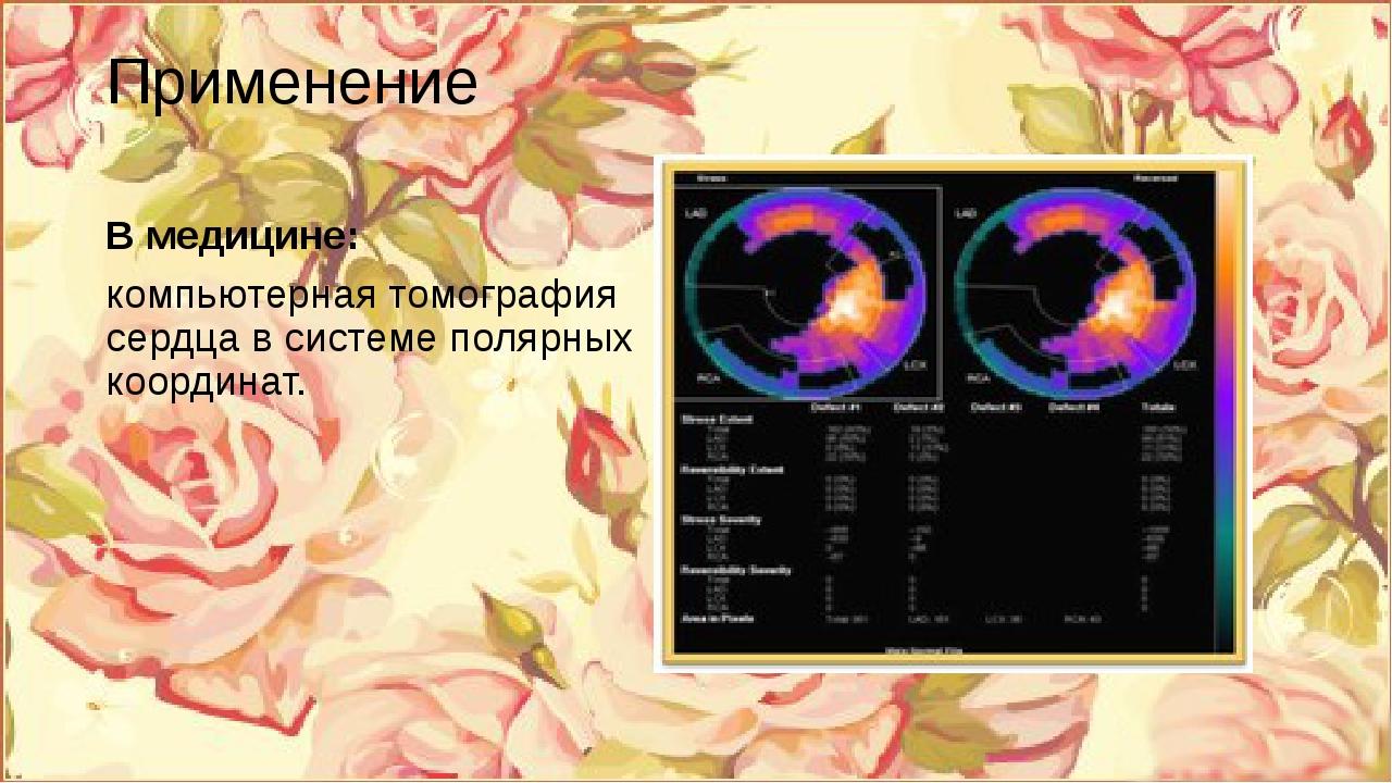 Применение В медицине: компьютерная томография сердца в системе полярных коор...