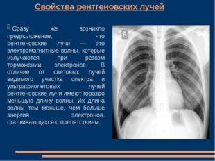Свойства рентгеновских лучей Сразу же возникло предположение, что рентгеновс