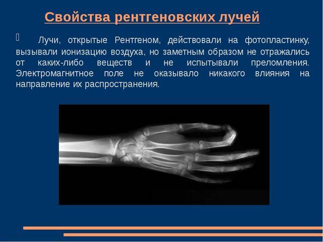 Свойства рентгеновских лучей Лучи, открытые Рентгеном, действовали на ф...
