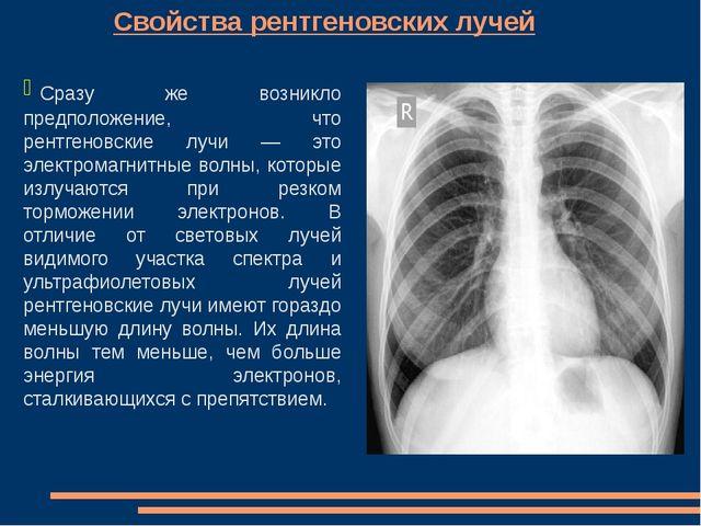 Свойства рентгеновских лучей Сразу же возникло предположение, что рентгеновс...