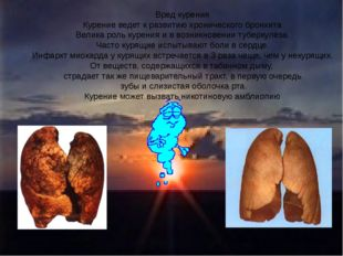 Вред курения Курение ведет к развитию хронического бронхита Велика роль курен