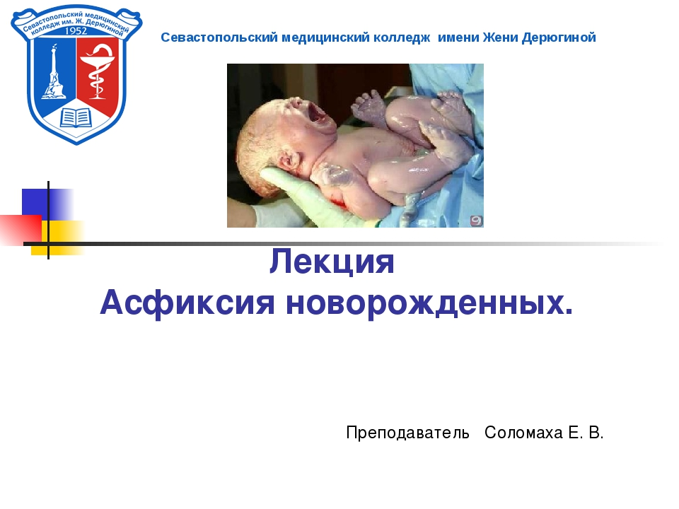 Лекция Асфиксия новорожденных. Преподаватель Соломаха Е. В. Севастопольский м...