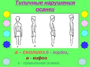 Типичные нарушения осанки а - сколиоз, б - лордоз, в - кифоз, г - правильная