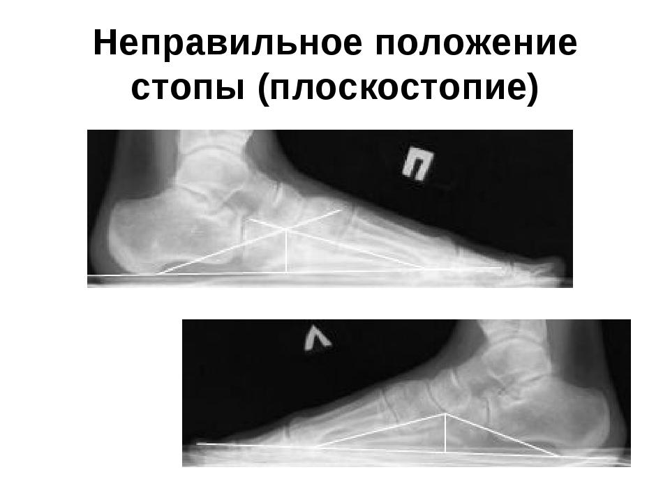Неправильное положение стопы (плоскостопие)