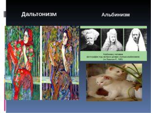 Дальтонизм Альбинизм