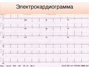 Электрокардиограмма