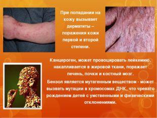 Канцероген, может провоцировать лейкемию, накапливается в жировой ткани, пора