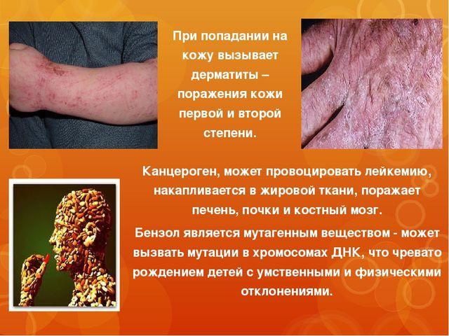 Канцероген, может провоцировать лейкемию, накапливается в жировой ткани, пора...