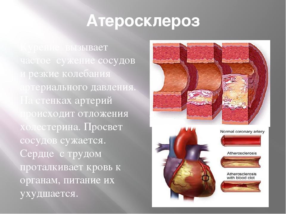 Атеросклероз Курение вызывает частое сужение сосудов и резкие колебания артер...