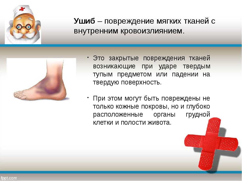 Ушиб – повреждение мягких тканей с внутренним кровоизлиянием. Это закрытые по...